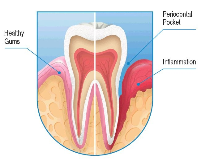 Kevin M Connelly Dmd Periodontal Disease And Treatment In Lewiston